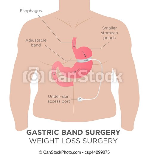 Gastric Band Weight Loss Surgery - csp44299075