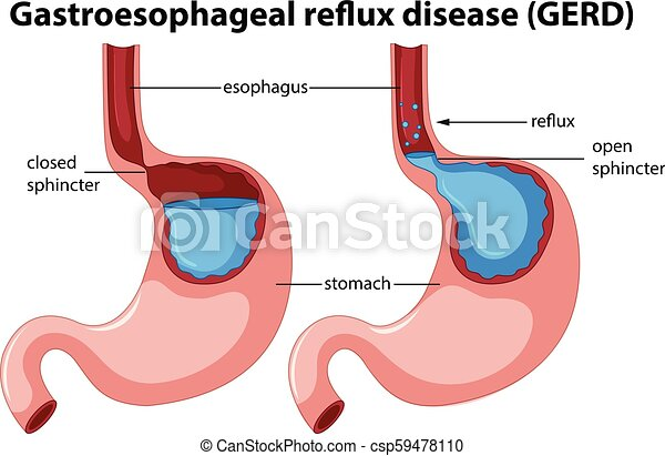 gastroesophageal reflux disease anatomy - csp59478110