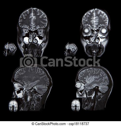 Gehirn, bild, berechnet, röntgenaufnahme, t. Tomographie, gehirn ...