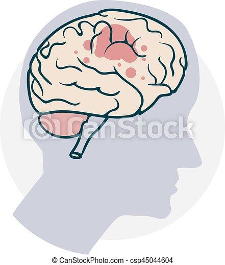 Probleme mit dem Gehirn - csp45044604
