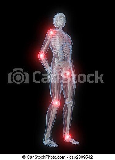 Gelenke, schmerzhaft. Geleistet, skelett, gelenke, abbildung ...