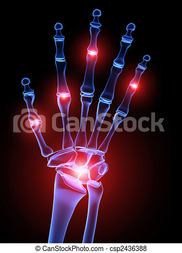 Gelenke, schmerzhaft, hand. Geleistet, skelettartig, abbildung, hand ...