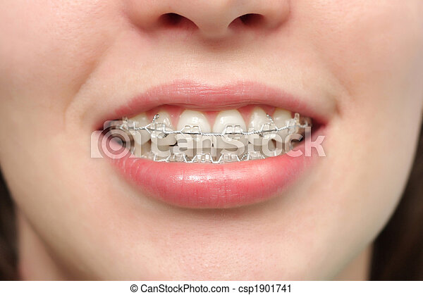 Girl smiles with braces - csp1901741