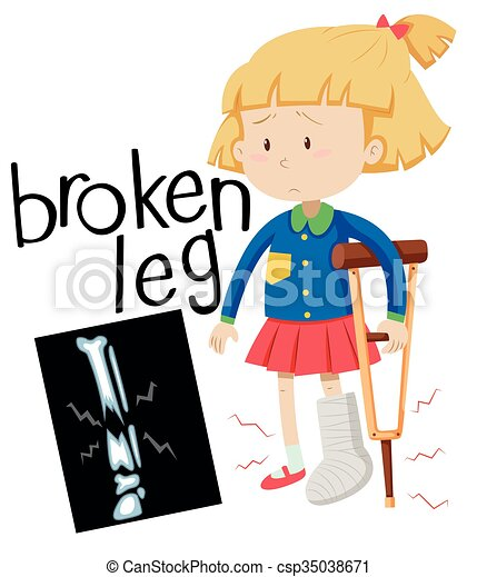 Girl with broken leg and x-ray film - csp35038671