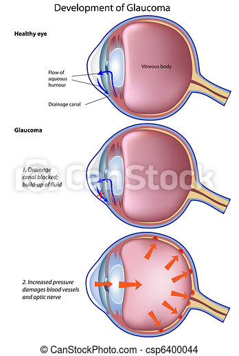 glaucoma, eps8 - csp6400044