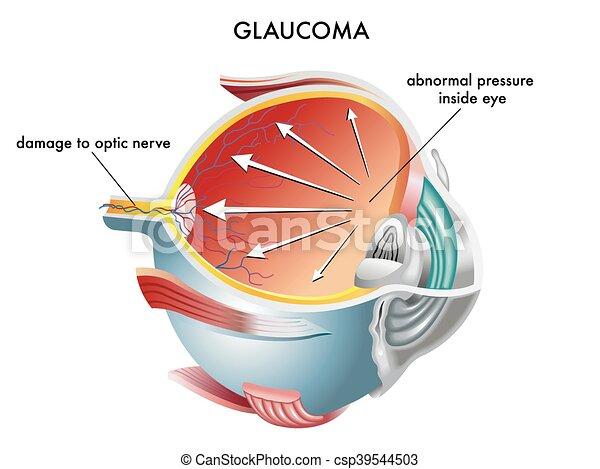 Glaucoma - csp39544503