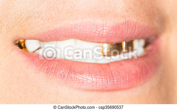 Girls with gold teeth