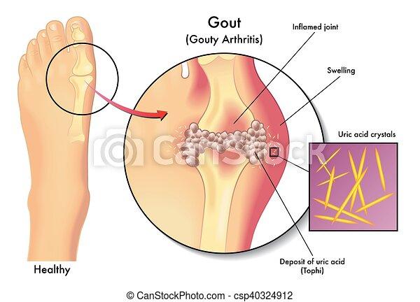 medical illustration of the symptoms of gout. Black Bedroom Furniture Sets. Home Design Ideas