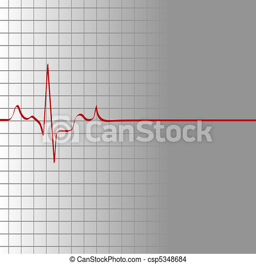 grid with heart beat and then flatline  - csp5348684