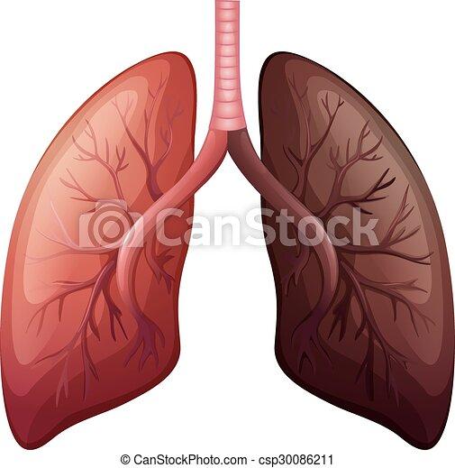 Groß, diagramm, skala, lungenkrebs. Diagramm, skala, krebs ...