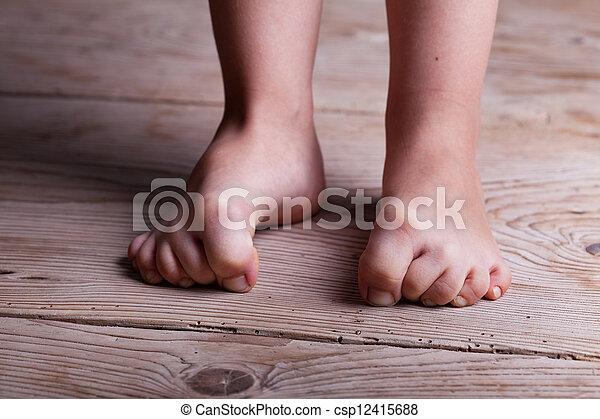 gyermekkor, határozatlanság - csp12415688
