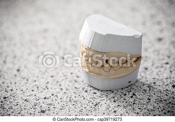 Gypsum model plaster - csp39719273