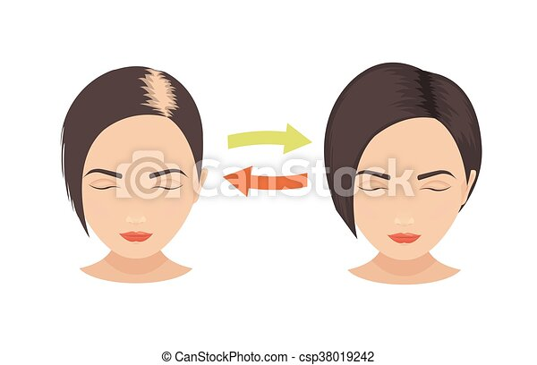 Line Drawing Face Woman : Hair loss in women woman with problems before and