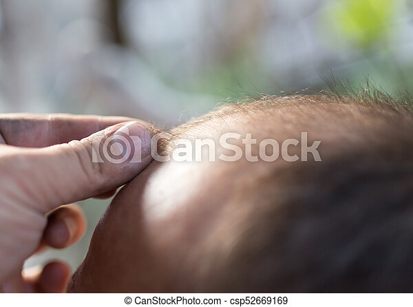 hair loss on the head of a man - csp52669169