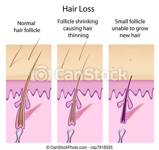 Hair loss process, eps8 - csp7918325