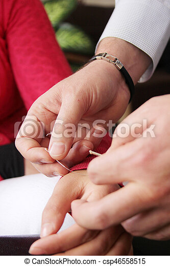 Hand Performing Acupuncture Therapy - csp46558515
