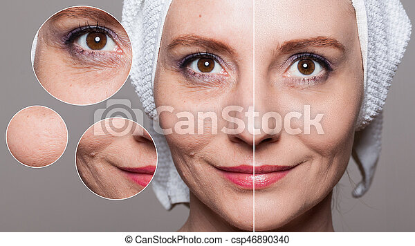 happy woman after beauty treatment - before/after shots - skin care, anti-aging procedures, rejuvenation, lifting, tightening of facial skin - csp46890340