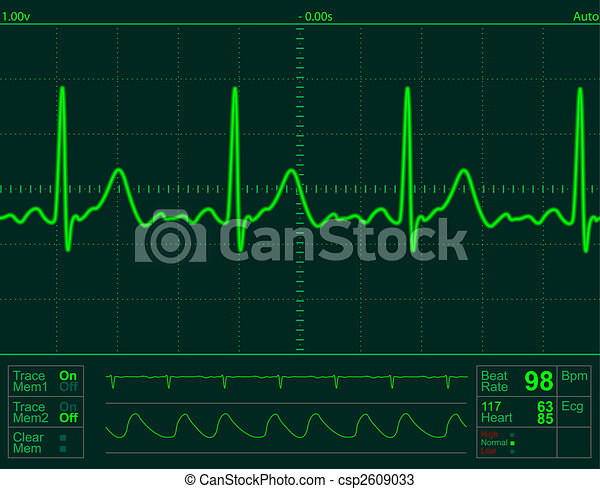 hart, scherm, monitor - csp2609033