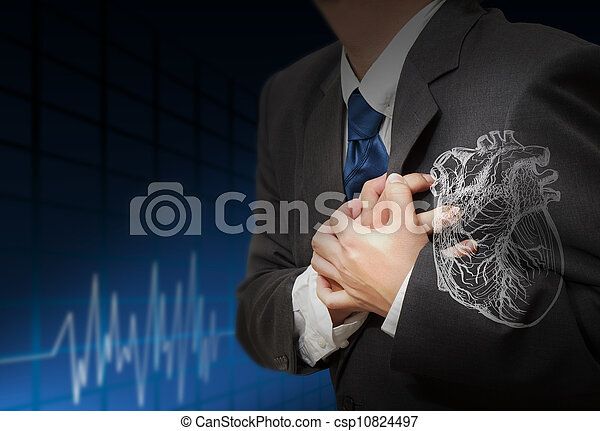 hartaanval, ritmes, cardiogram - csp10824497