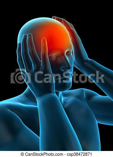 headache/ migraine - csp38472871