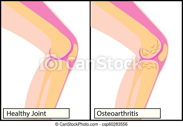 Healthy knee joint and osteoarthritis medical vector illustration - csp60283556