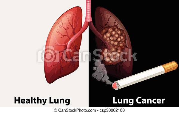 Healthy lung against lung cancer diagram illustration healthy lung against lung cancer diagram csp30002180 ccuart Image collections