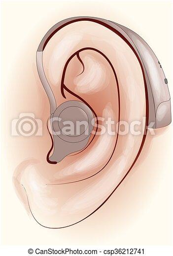 hearing aid - csp36212741