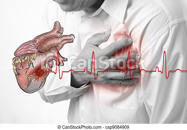 Heart Attack and heart beats cardiogram background - csp9084909