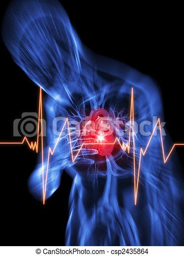 heart attack - csp2435864