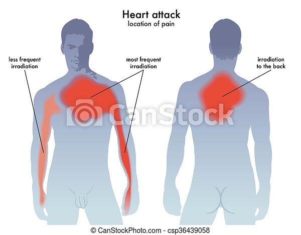 Medical illustration of the heart attack pain location.
