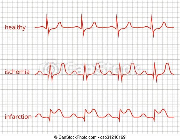 Healthy Heart Rate Chart Tiyam