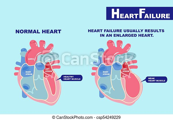 heart failure concept - csp54249229