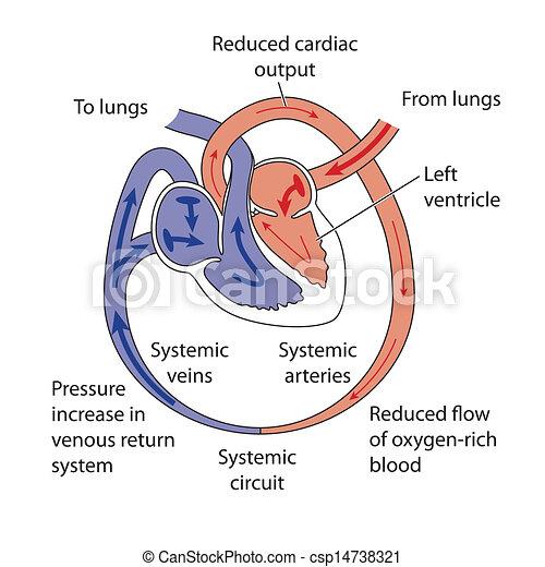 Heart failure - csp14738321