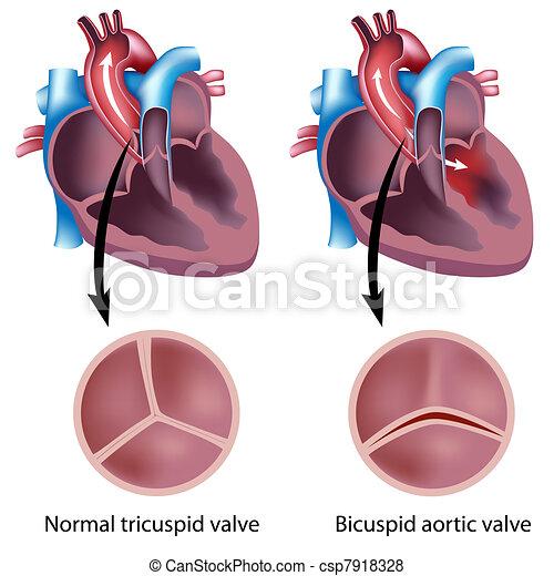 heart valve defect, eps8 - csp7918328