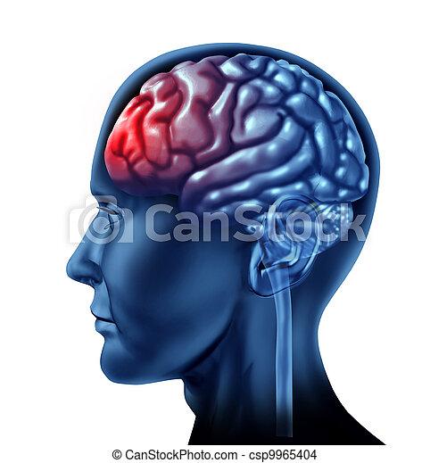 hersenen, problemen - csp9965404