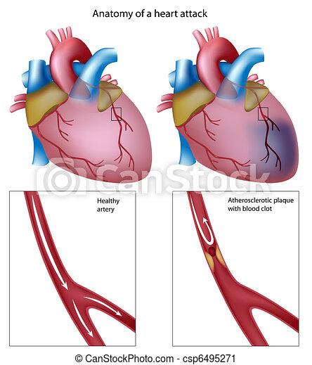hjärta, eps8, angrepp - csp6495271