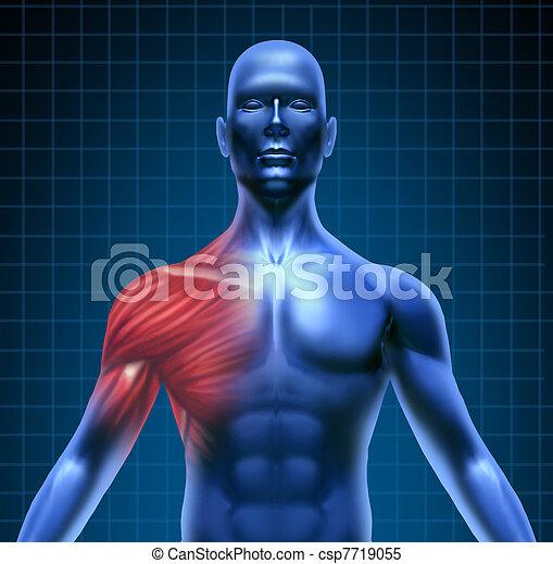 hombro, dolor músculo - csp7719055