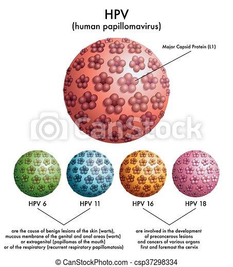 HPV (human papillomavirus) - csp37298334
