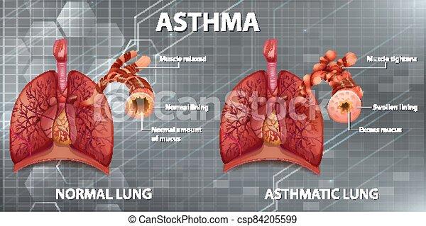 Human anatomy Asthma diagram - csp84205599
