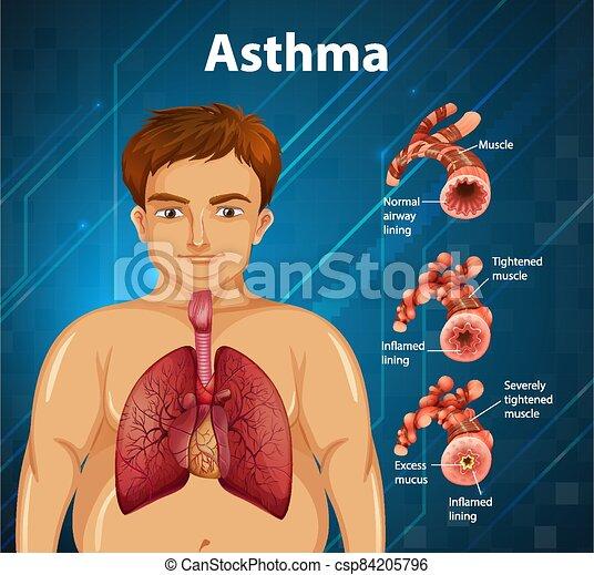 Human anatomy Asthma diagram - csp84205796