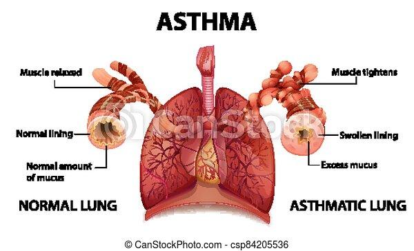 Human anatomy Asthma diagram - csp84205536