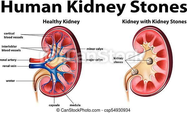 Human anatomy diagram with kidney stones illustration human anatomy diagram with kidney stones csp54930934 ccuart Gallery
