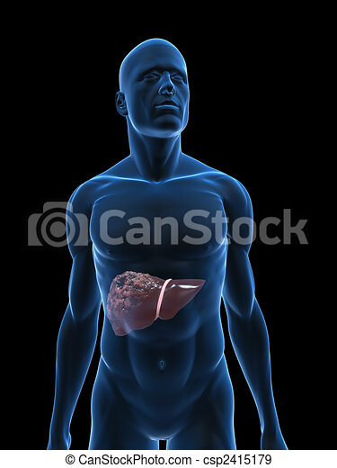 Human bad liver 3d rendered illustration of a human body shape with human bad liver csp2415179 ccuart Choice Image