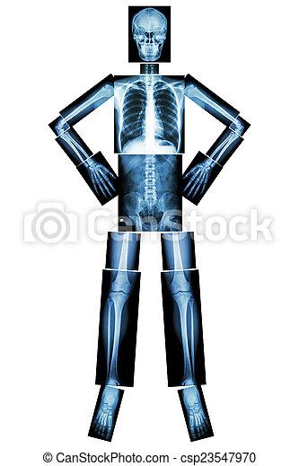 human bone stand and akimbo xray whole body  head skull