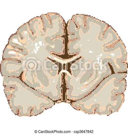 human brain isolated on white - csp3647842