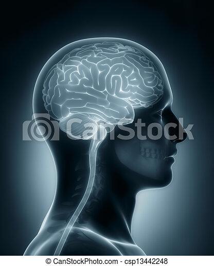 Human brain medical x-ray scan - csp13442248