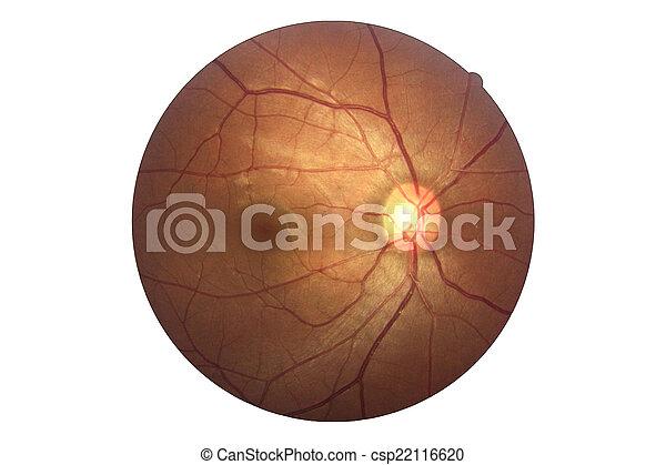 Human eye anatomy, retina, optic disc artery and vein etc. .
