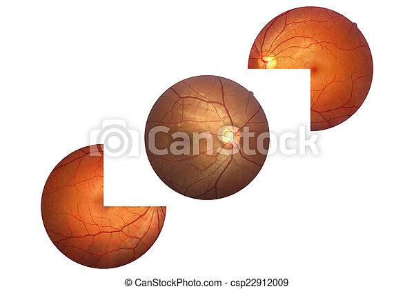 Human Eye Anatomy Retina Optic Disc Artery And Vein Etc