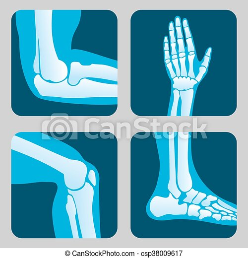 Human joints, knee and elbow, ankle wrist. medical orthopedic vector ...