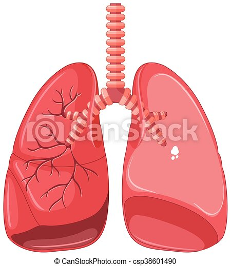 Human lungs with tuberculosis illustration.